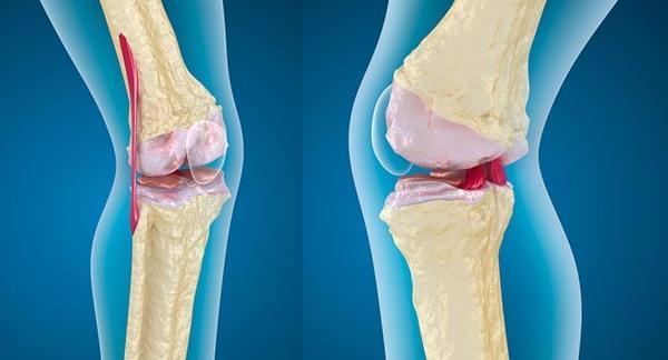 a térdízület fájdalmának ápolási folyamata