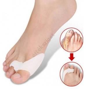 Lúdtalp, bütyök, kalapácsujj: mik a leggyakoribb lábbetegségek a kényelmetlen cipőtől?