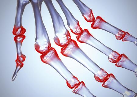a csontízületek krónikus gyulladása
