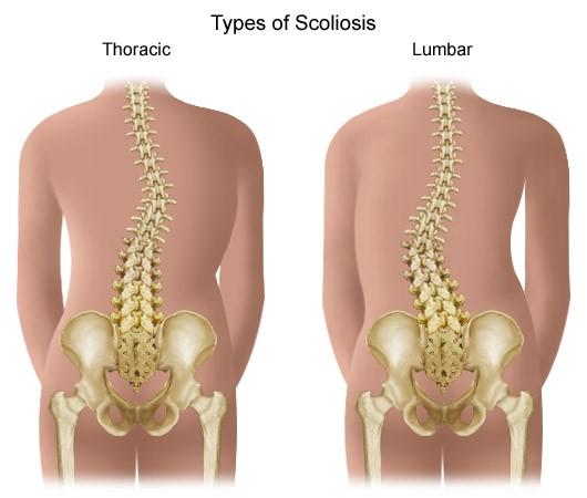a csípőízület első fokának artrózisa)