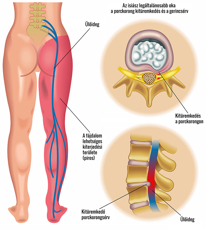 a csípőízület ragasztásainak tünetei