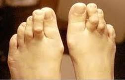 a jobb láb nagy lábujja ízülete)