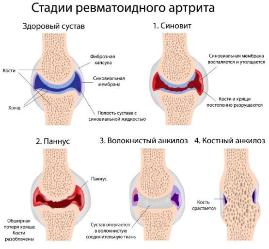 a karok kis ízületei fájnak