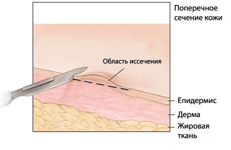 a kollagenozis kötőszövetének örökletes betegségei
