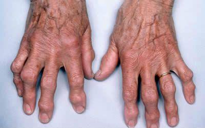 a kéz interfalangeális ízületeinek deformáló osteoarthrosis-ja