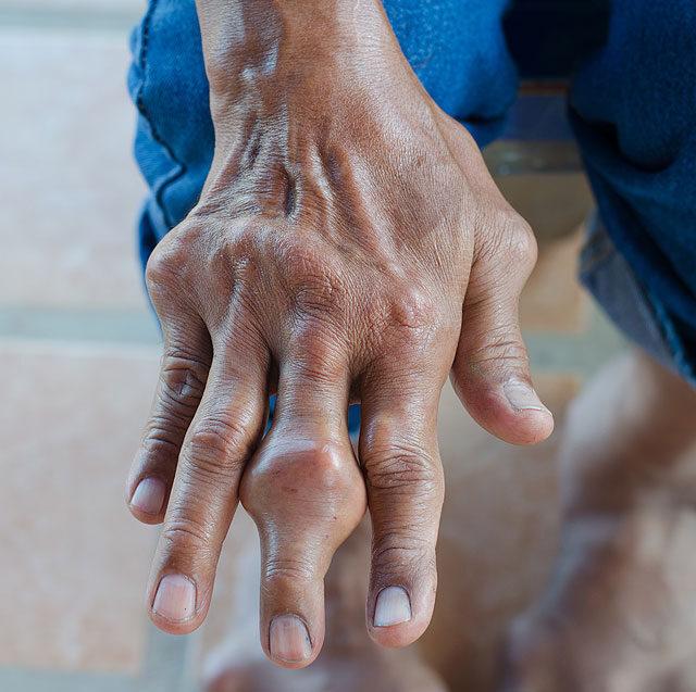 a kéz és a térd forró ízületei)
