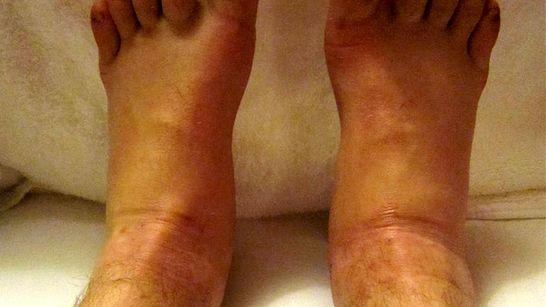 a lábak boka lábának duzzanatát