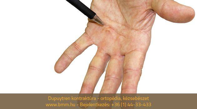 hogyan kell kezelni a csuklóízület osteoarthrosisát a bokaízület duzzanata nem fáj