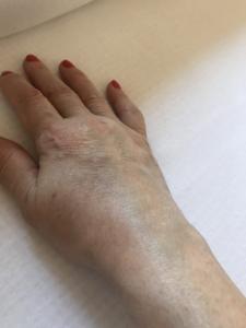 a térd bursitisz ízületi gyulladása)