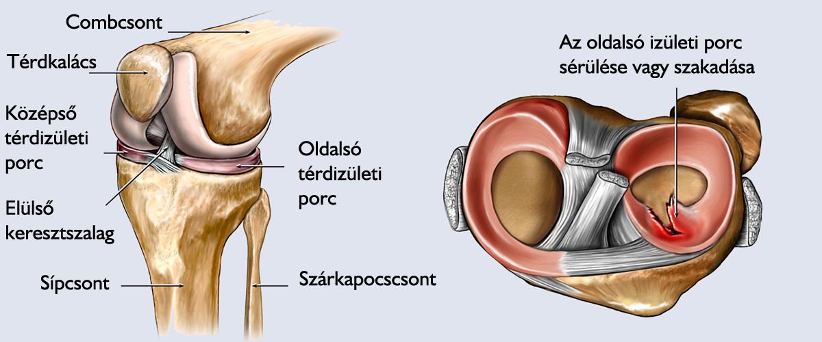 a térd második fokú artrózisának kezelése)