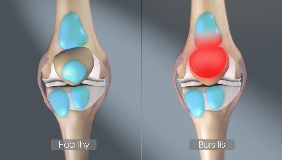 csukló artrózis 1-2 fok