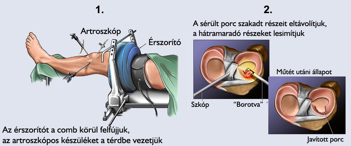 a térd oldalsó ínszalagjának károsodása)