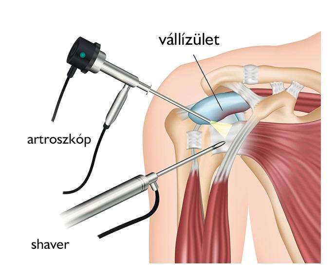 a vállízület artrózisának kezelési rendje)