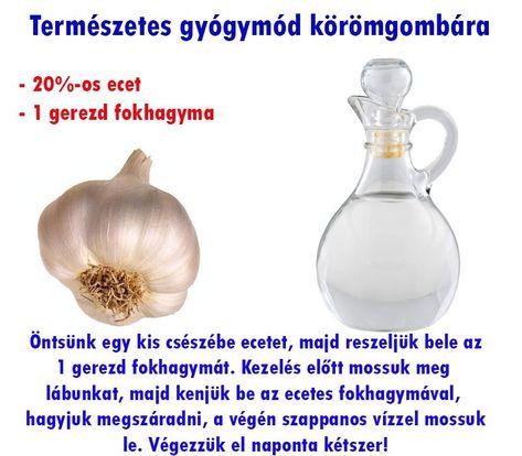 arthrosis kezelés capsicum)