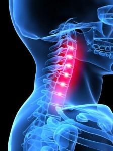 kenőcsök vagy gélek a nyaki osteochondrozishoz)