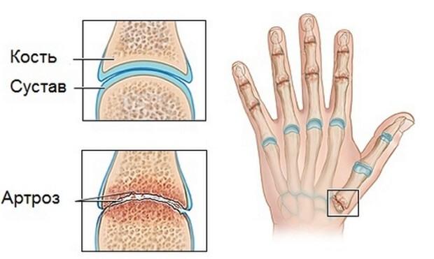 mit inni az ujjak ízületeinek fájdalmától