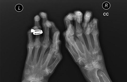 A láb artroszisának és kezelésének tünetei