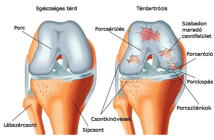 sarok artrózis