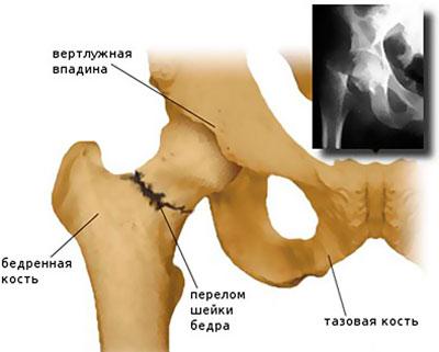 a csípőízület összeroppant és fáj