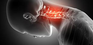 csontritkulás betegség)