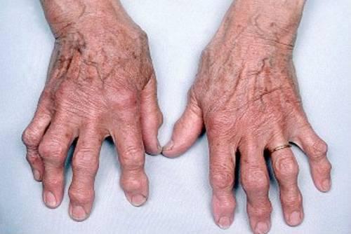 a kézízületek deformáló artrózisa