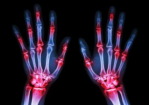 ahol és hogyan lehet a rheumatoid arthritis kezelésére