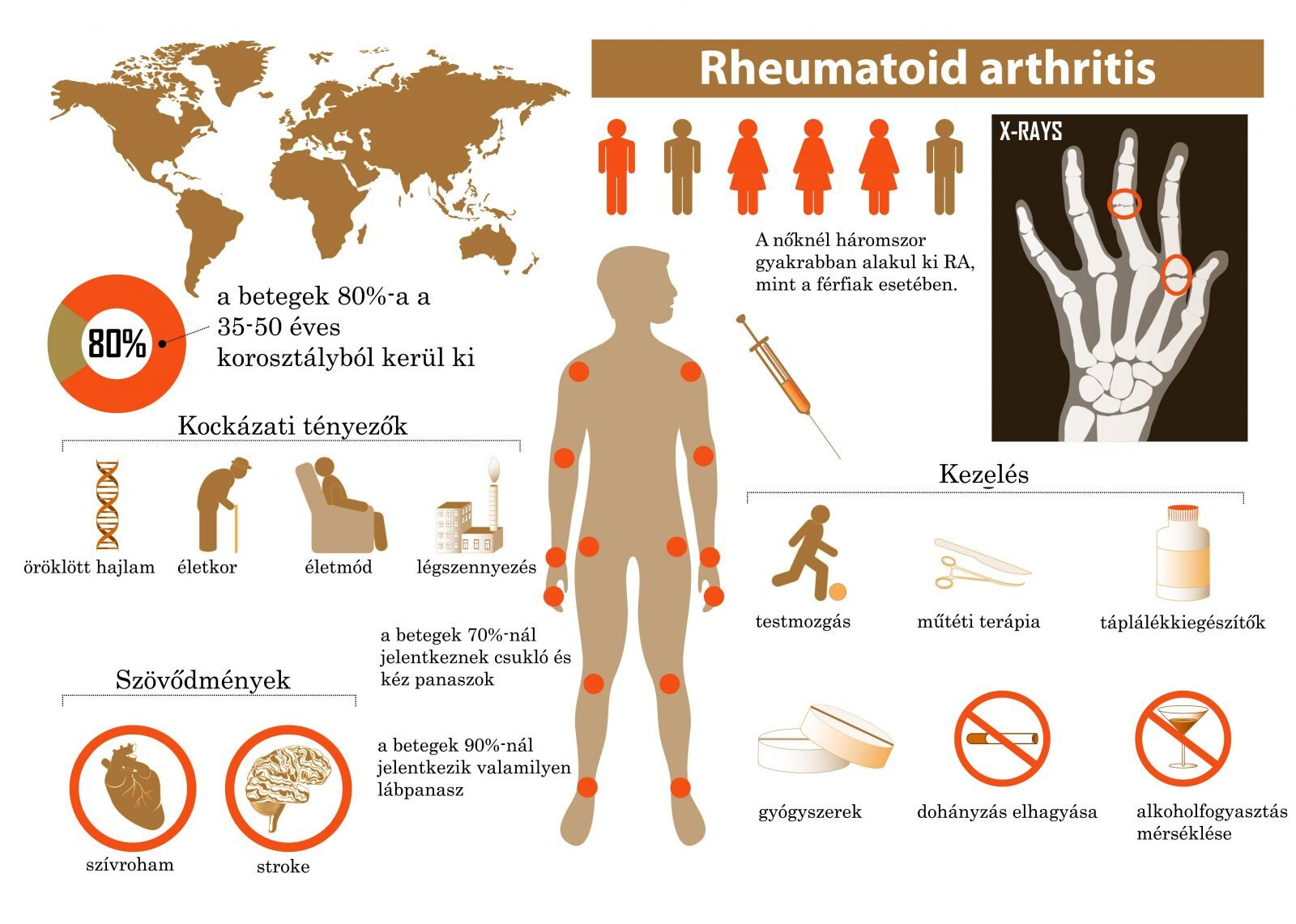 Rheumatoid arthritis – hol tartunk ma - A Figyelő ;1 | eLitMed
