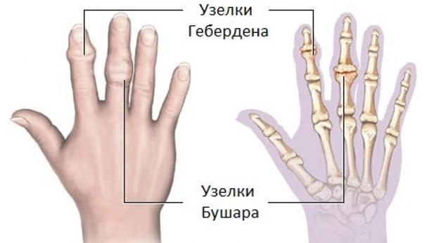 az ujjak falának ízületi gyulladása)