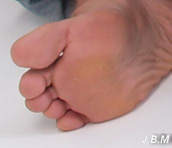 az ujjak ízületén kúp fáj