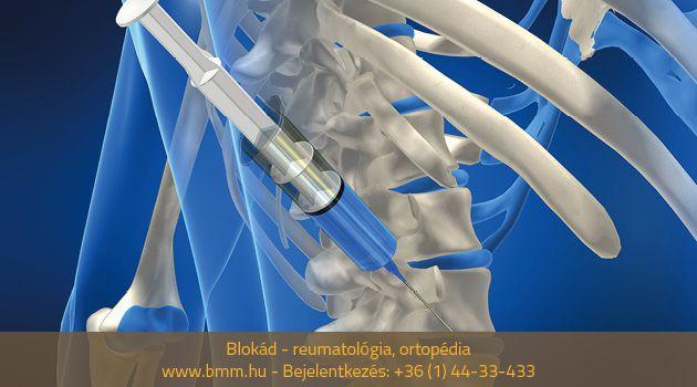 gyógyszeres blokád ízületi fájdalom)