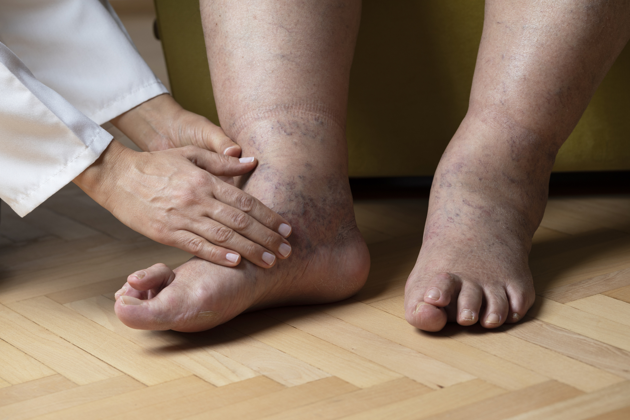 duzzadt lábát a boka)