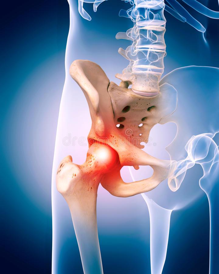 fájdalom a csípő területén járás közben