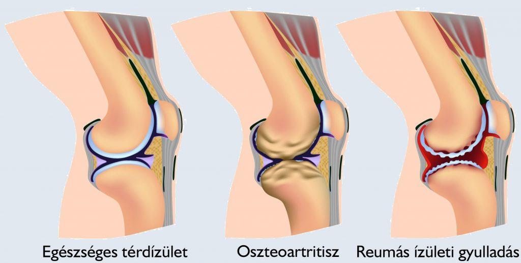 lábak ízületi betegsége térd szinovitis