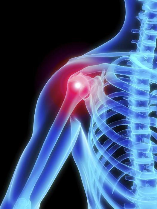 a vállízület arthroso-arthritis kezelése