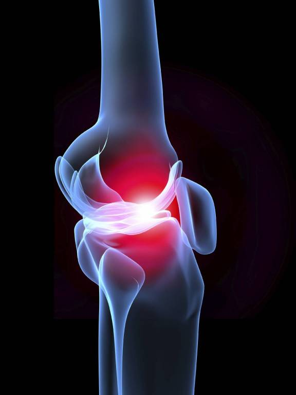 Tornagyakorlatok artritiszes betegek számára - EgészségKalauz