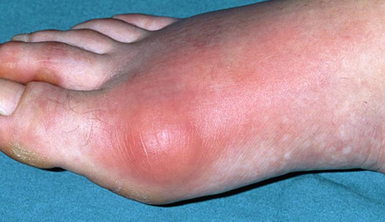 ízületi gyulladás és ízületi gyulladás a lábujjak kezelésében az ízületeim fáj 21 év