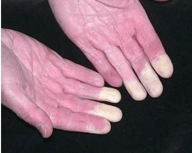 fájdalom a bal kéz kisujjának ízületében