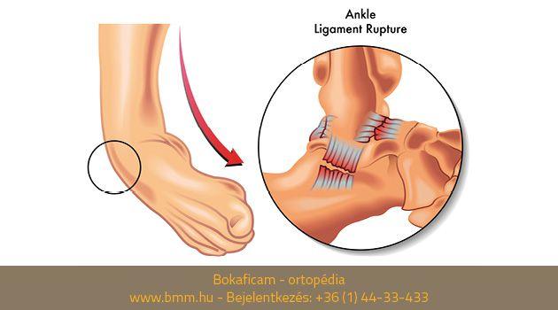 éles fájdalom az egész test ízületeiben a lábak ízületeinek fáradtsága és fájdalmak