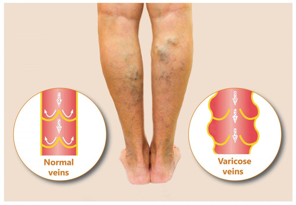 bokagyulladás lapos lábak miatt hogyan lehet kezelni térdfájdalomcsillapító gyógyszereket