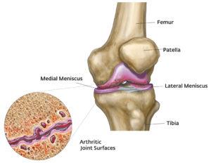 bokaödéma artrózisos kezeléssel