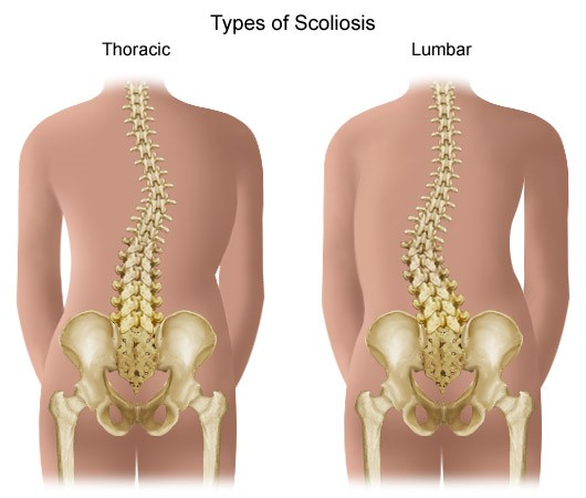mi a deformált artrózis kezelés sarok artritisz, mint kezelni