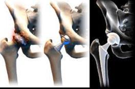 lehet úszni a csípőízület artrózisával