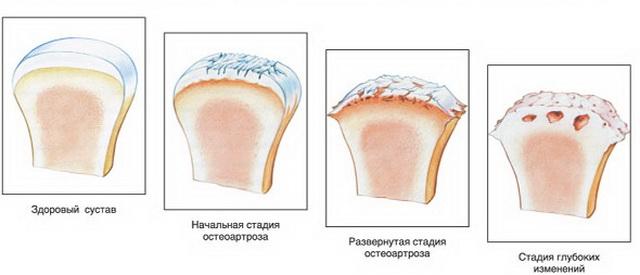 a nagy ízületek periartikuláris szöveteinek gyulladása
