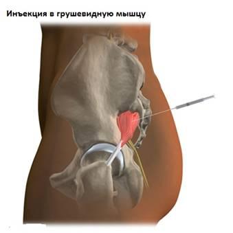 fonoforézis közös kezelés)