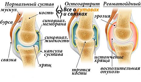 Őssejtinjekcióval az ízületi fájdalmak ellen