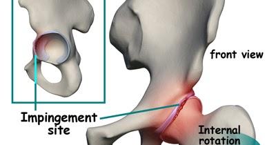 terápiás gyakorlatok a csípőízület fájdalmára