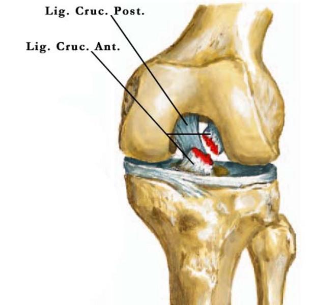 térdízület 1. fokozatának osteochondrosis
