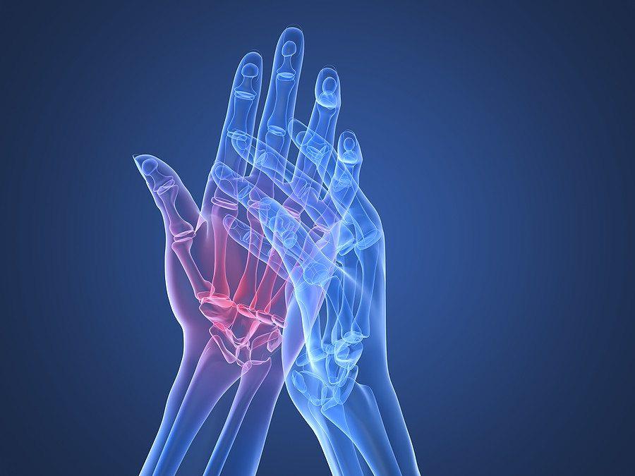 hogyan lehet kezelni a rheumatoid arthritis és az arthrosis)