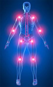 atherosclerosis ízületek fájnak bőrkiütés és ízületi fájdalom