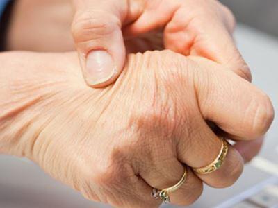 csomók az ujjainál ízületi gyulladás esetén)